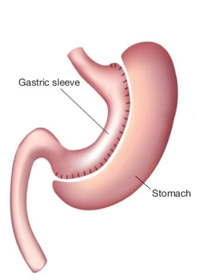 Figura de manga gástrica y estómago.