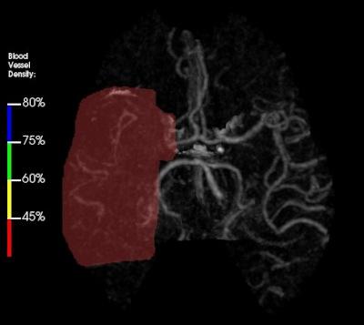 Oclusión de la arteria cerebral media derecha.